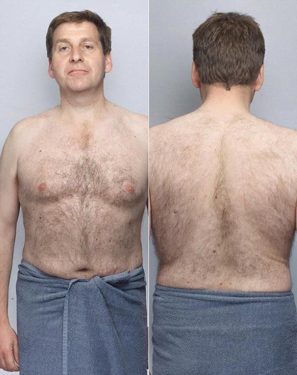 Буйные волосы у мужчин на теле как удалить