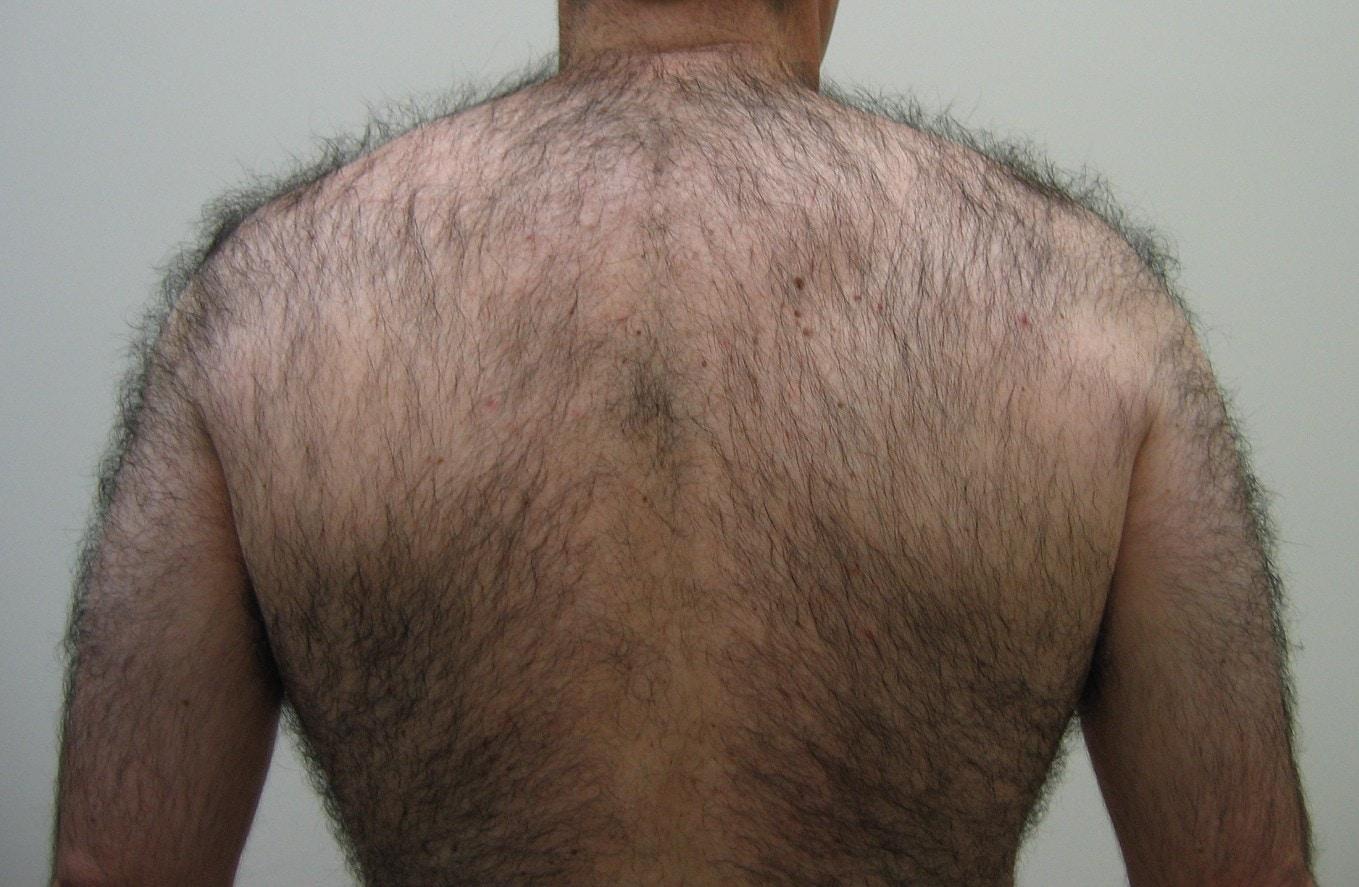 Буйные волосы у мужчин