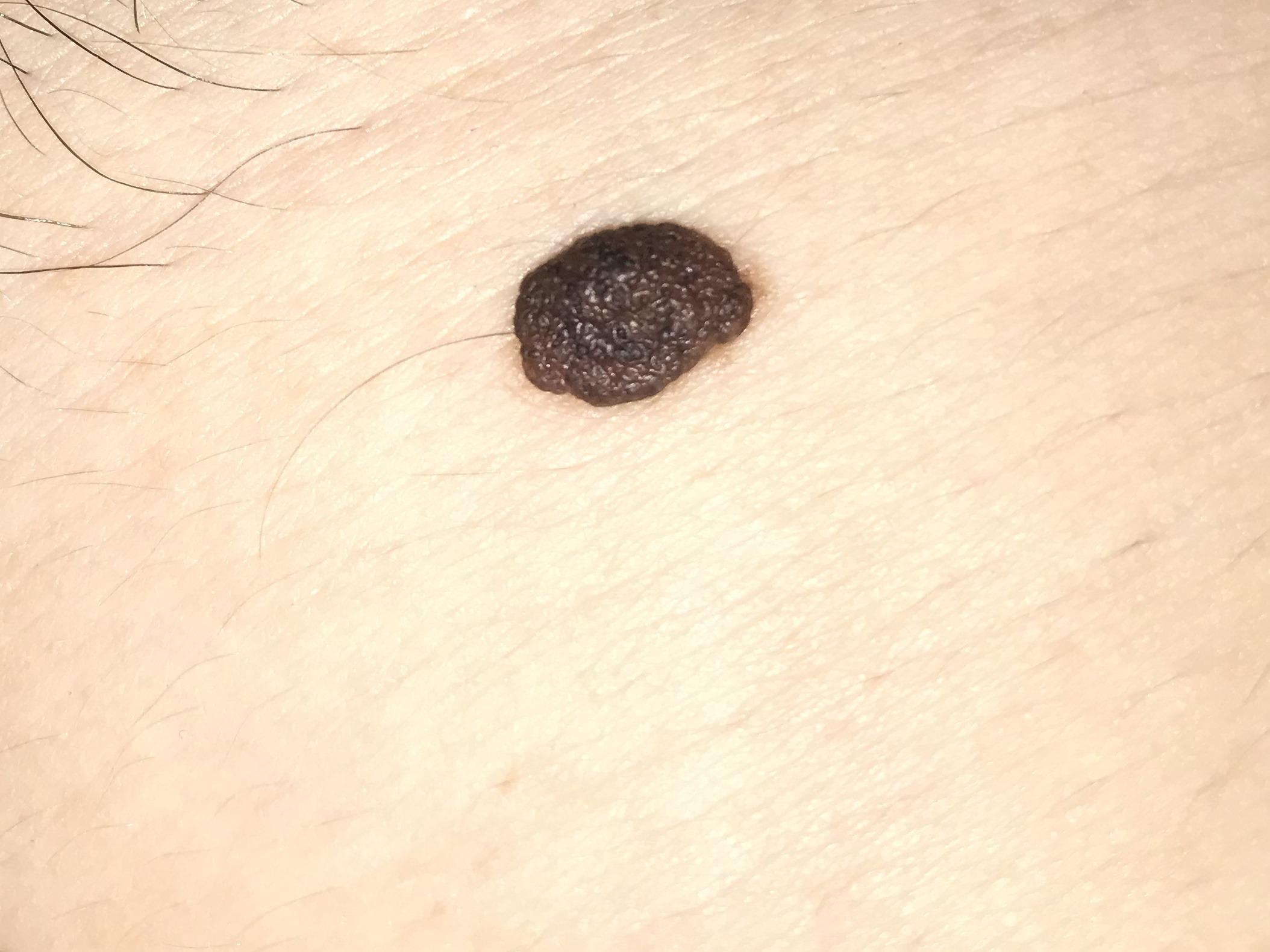 Черный волос из родинки