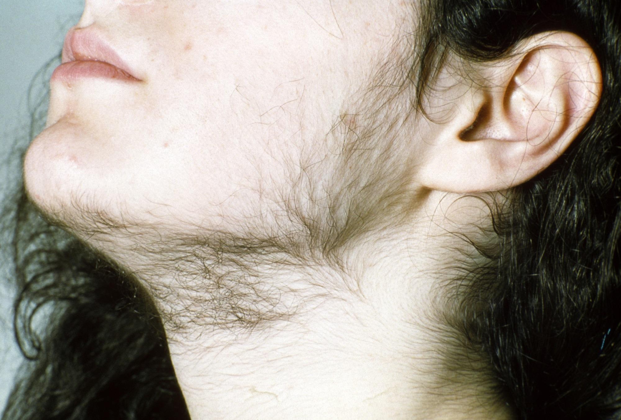 рост волос на щеках
