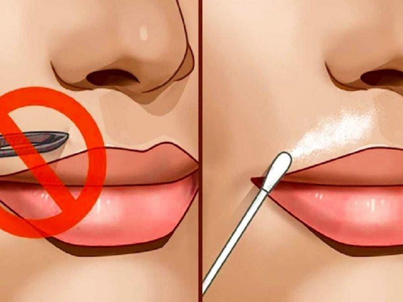Как избавиться от волос над верхней губой