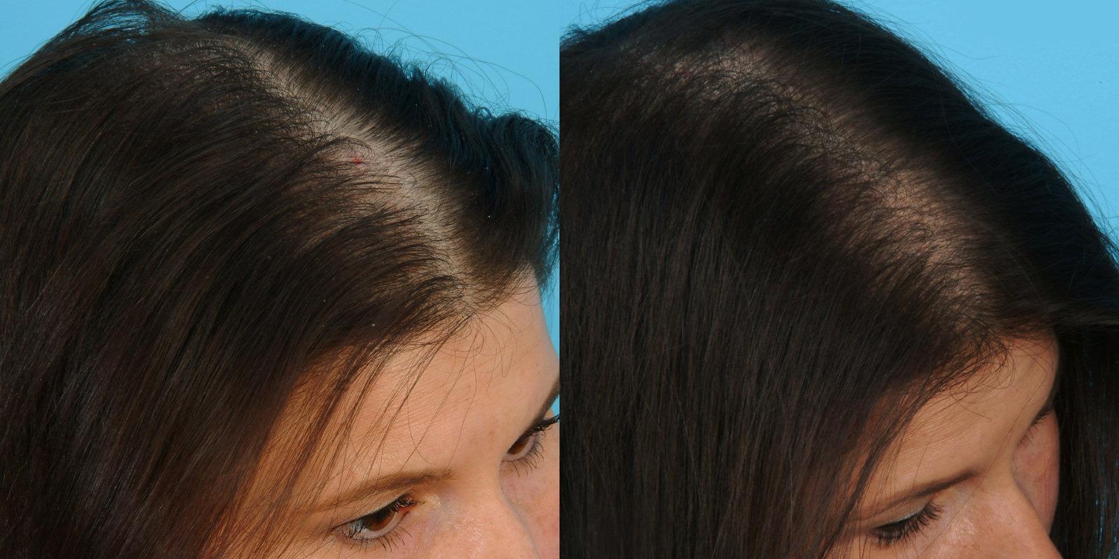 коронавирус выпадают волосы