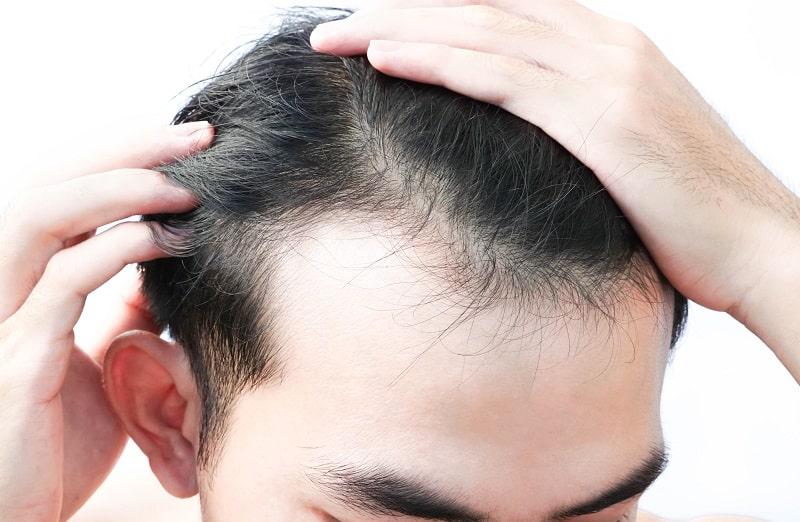 коррекция линии роста волос на лбу