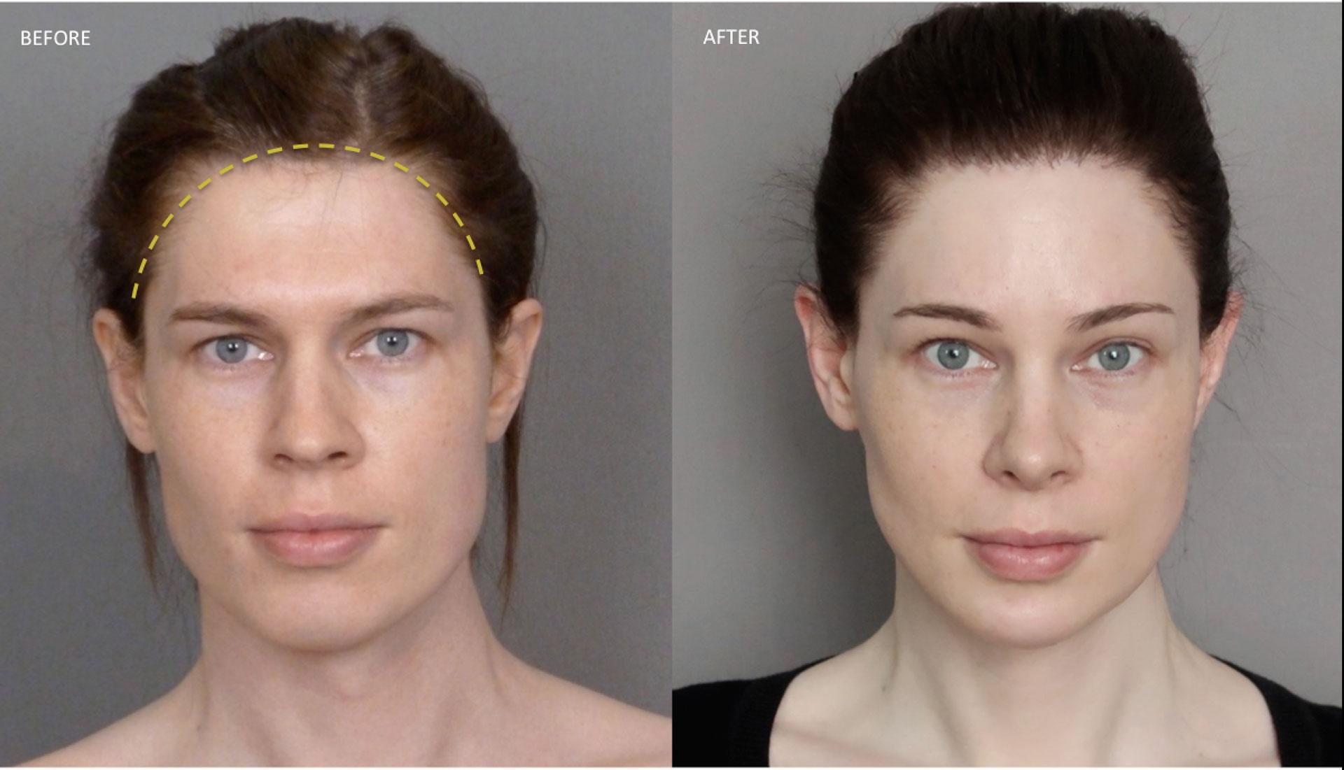коррекция линии роста волос операция