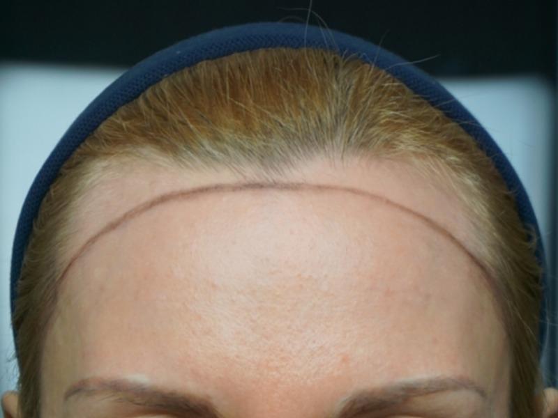 Линия роста волос на лбу у женщин