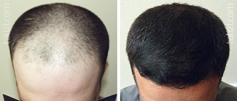 Сколько стоит пересадка волос