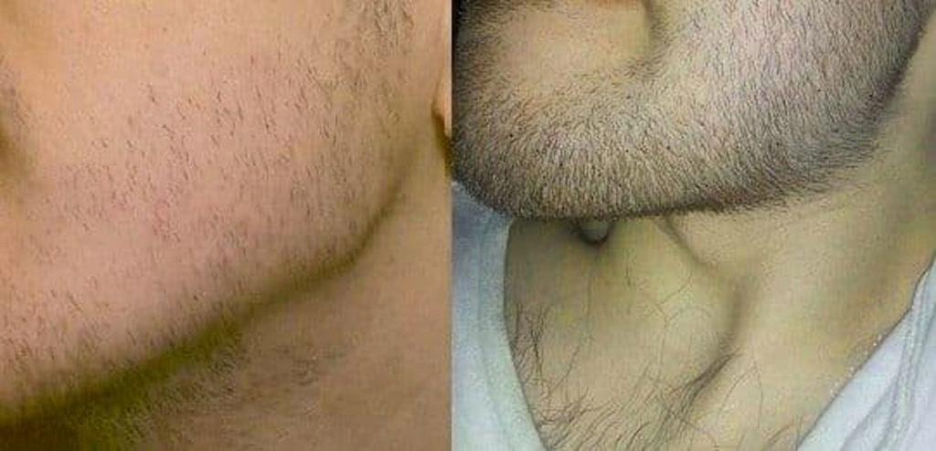 Растут ли волосы быстрее после бритья
