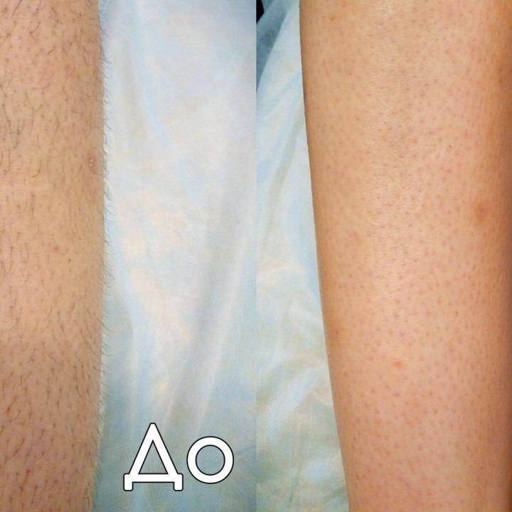 Растут ли волосы быстрее после бритья на ногах