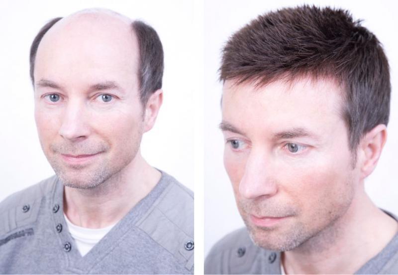 Система замещения волос для мужчин