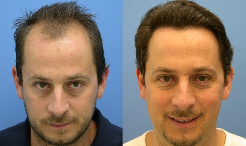 Сколько стоит пересадка волос у мужчин