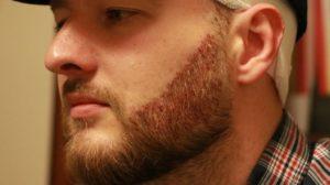 трансплантация бороды как проводится