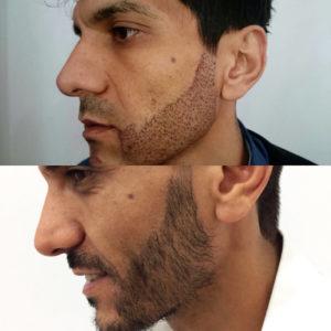 Трансплантация волос бороды цена