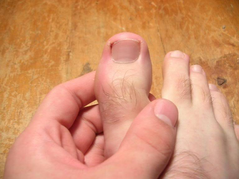 Волосы на большом пальце ноги