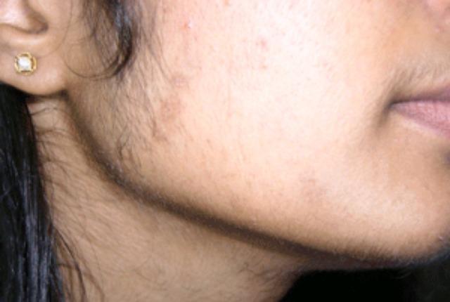 Волосы на щеках у женщин