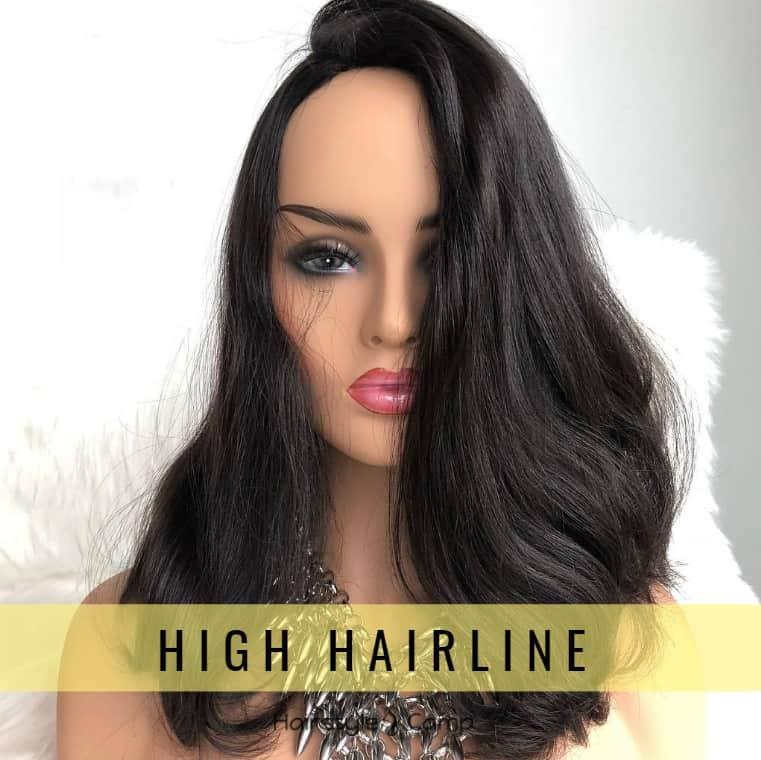 Высокая линия роста волос у женщин