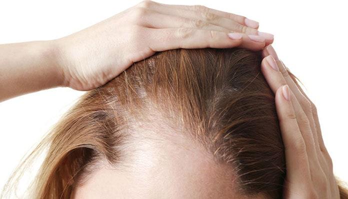 Лезут волосы причины у женщин после 30 и 40