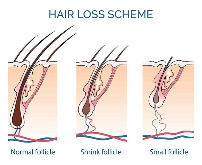 Миниатюризация волос как выглядит