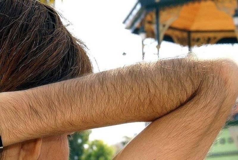 Оволосение рук