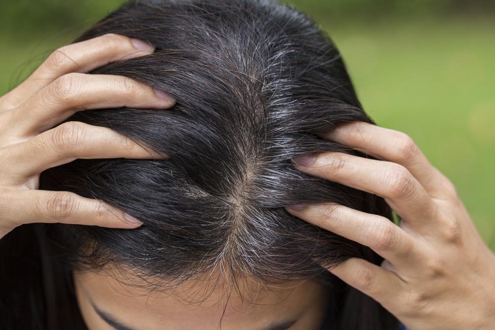 Сколько волос на голове