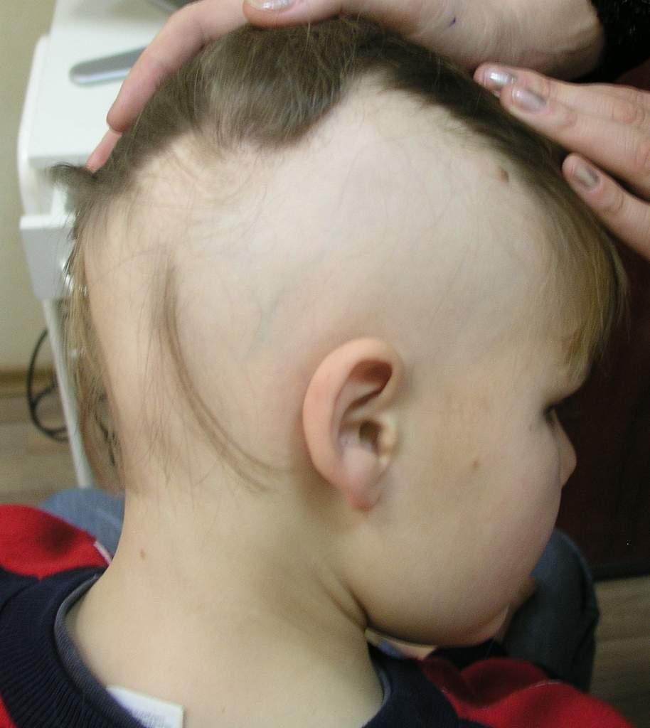 У ребенка на затылке выпали волосы