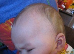 У ребенка не растут волосы на висках