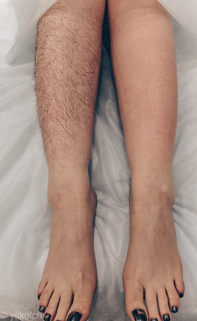 Волосы на голени