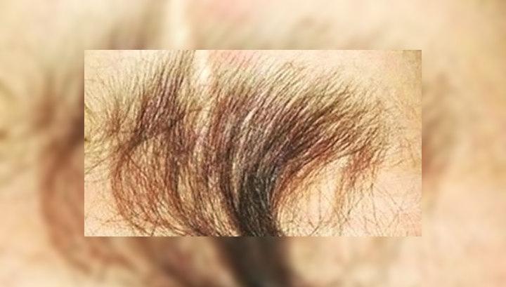 Волосы на копчике