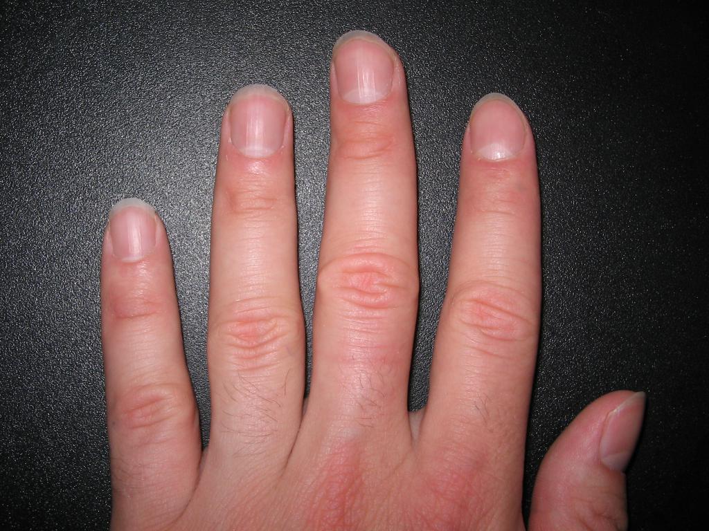 Волос на большом пальце руки