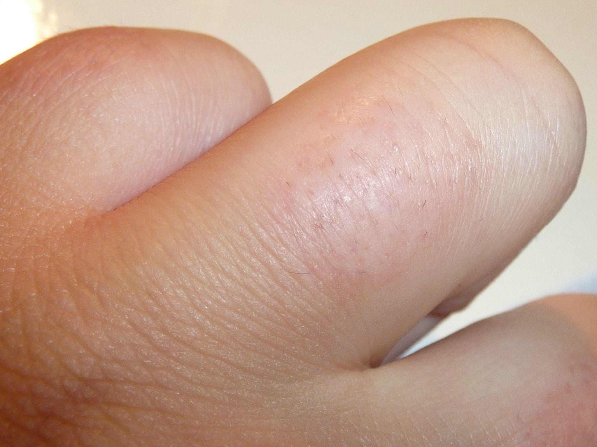 Волосы на пальцах рук уженщин