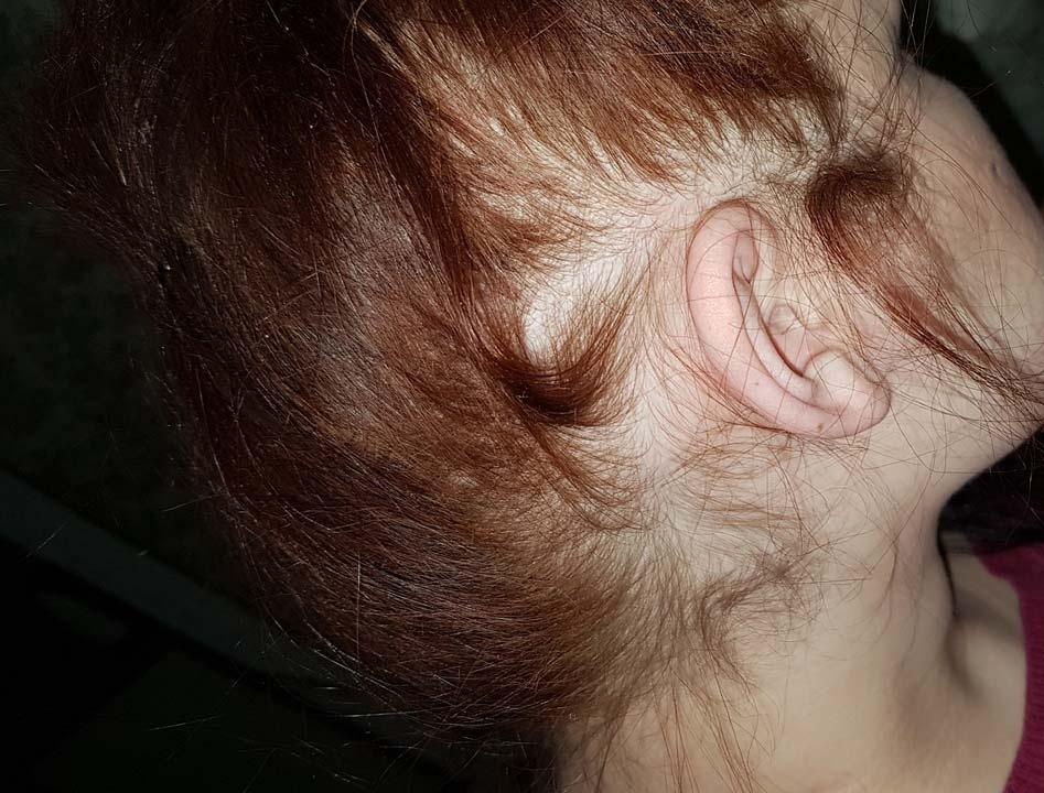 Волосы над ушами