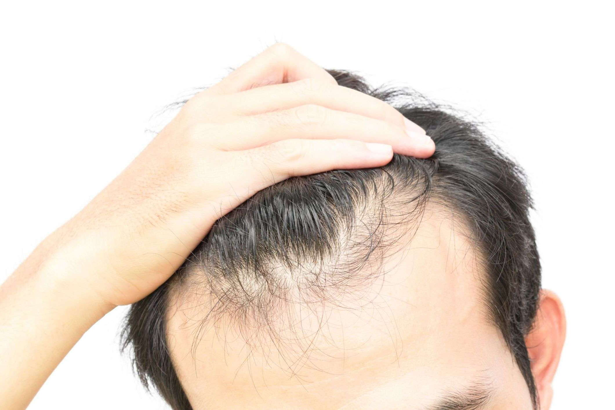 Выпадение волос и зуд