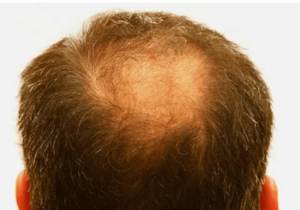 выпадение волос по андрогенному типу