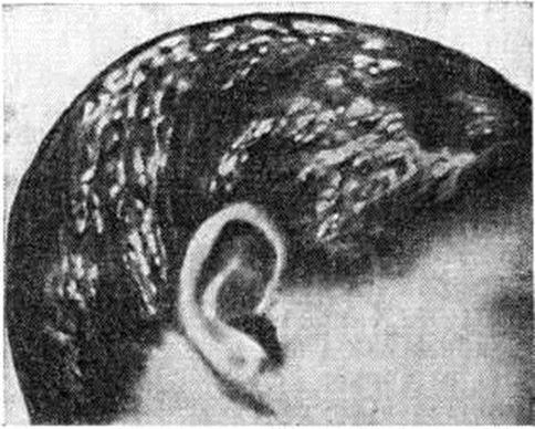 Фавус волосистой части головы