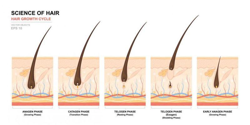 Отток телогена и диффузное выпадение волос