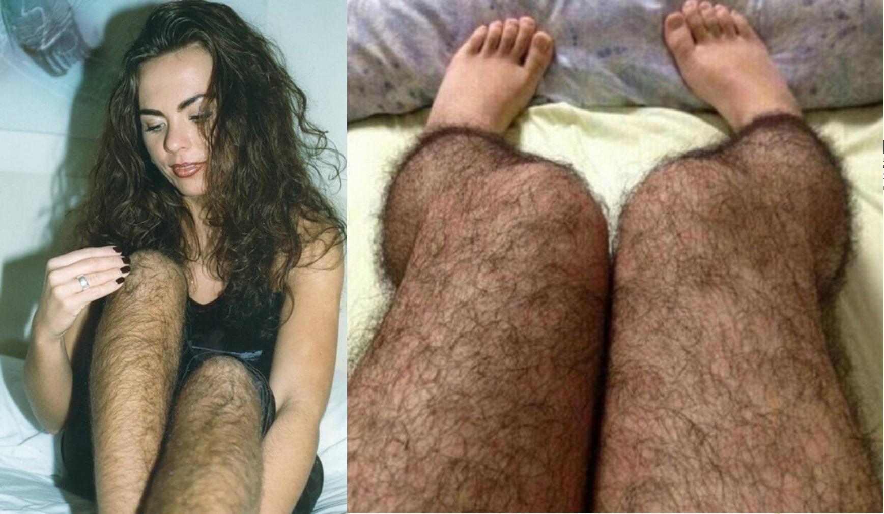 Женщине приснилось ноги волосатые