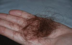 Почему выпадает много волос при мытье
