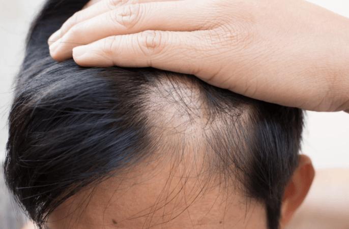 Ежедневное выпадение волос