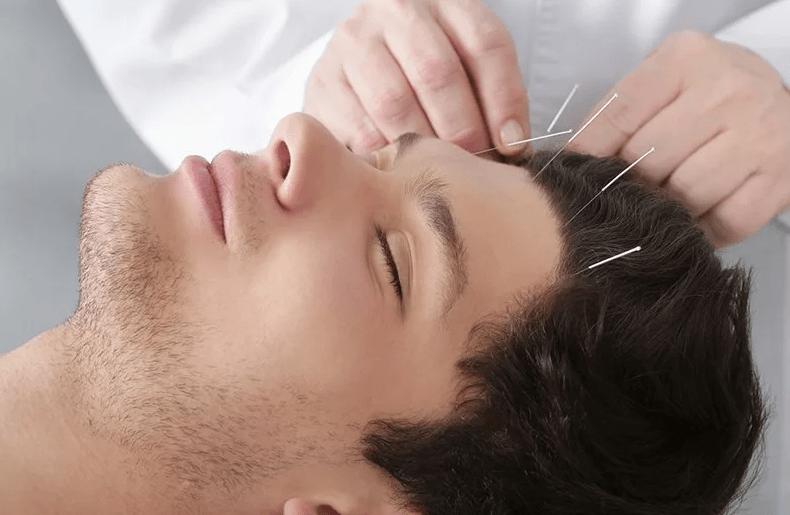 Иглоукалывание для роста волос