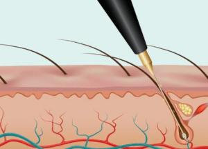 Электро удаление волос