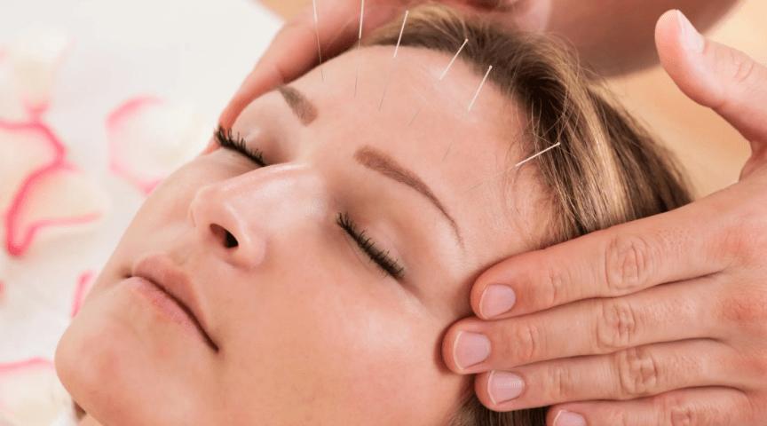 Как работает иглоукалывание для роста волос