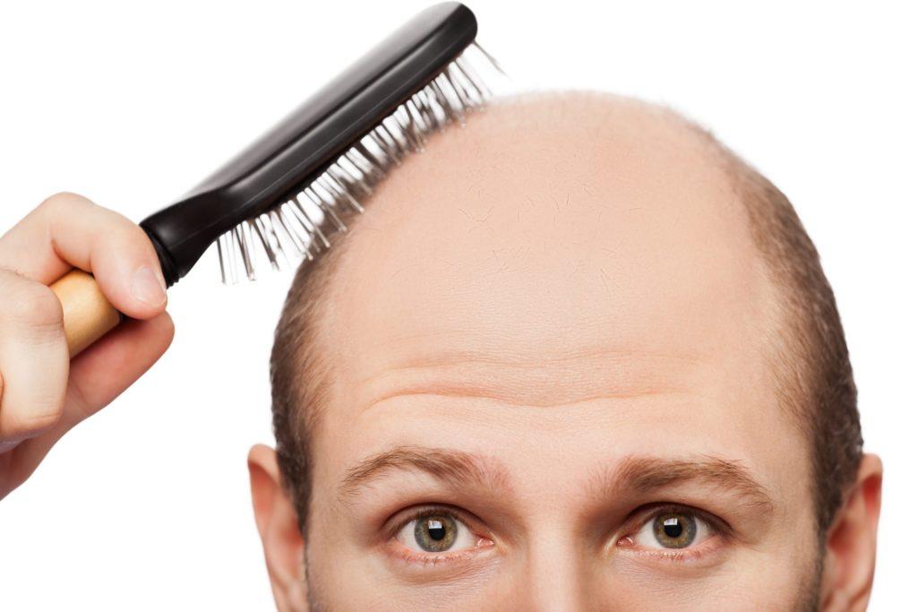 Кетоконазол для волос