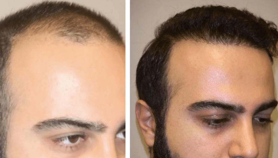 Клиника по пересадке волос в Турции-
