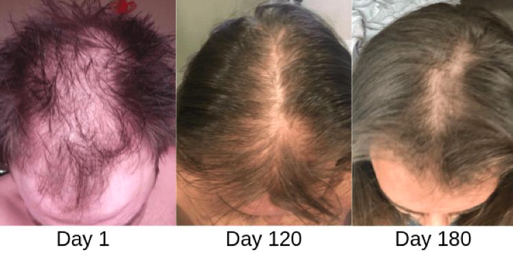 Лазерное лечение волос результаты до и после