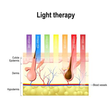 Лазерное лечение выпадения волос