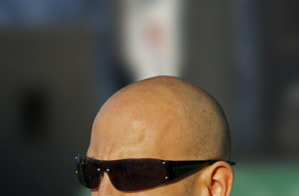 лысая голова на солнце