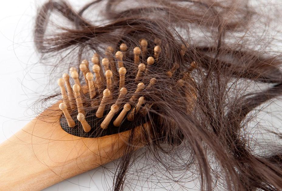 Узловатая ломкость клинически характеризуется появлением на стержне волоса узелков