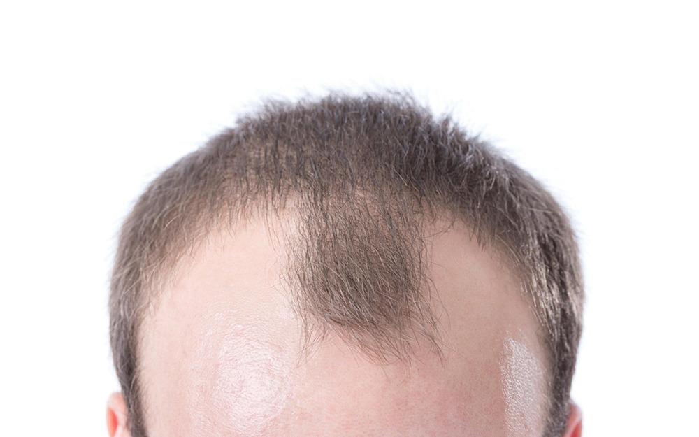 Как убрать пик вдовы на волосах навсегда