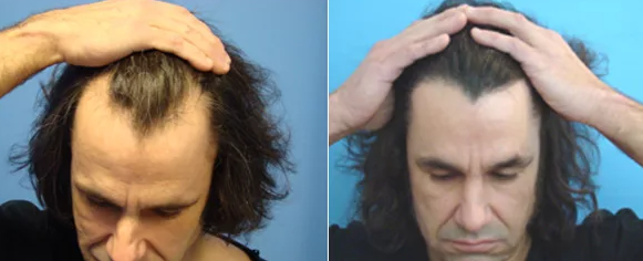 пик вдовы на волосах