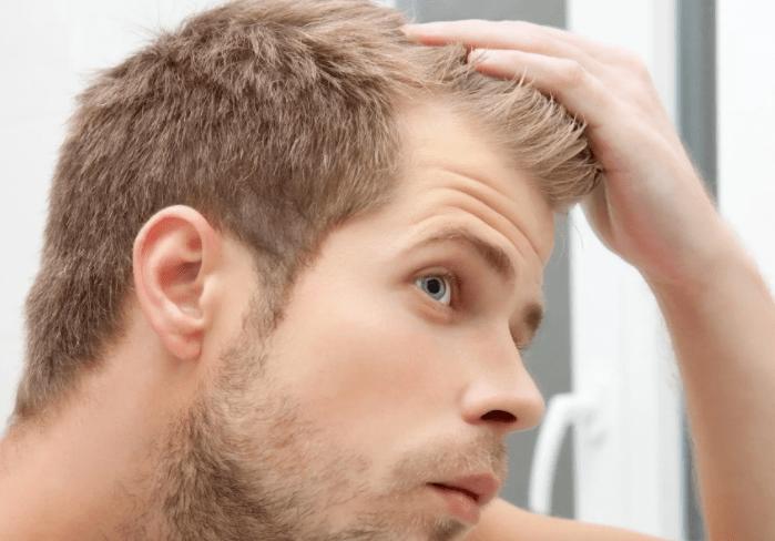 Почему лысеет голова у мужчины