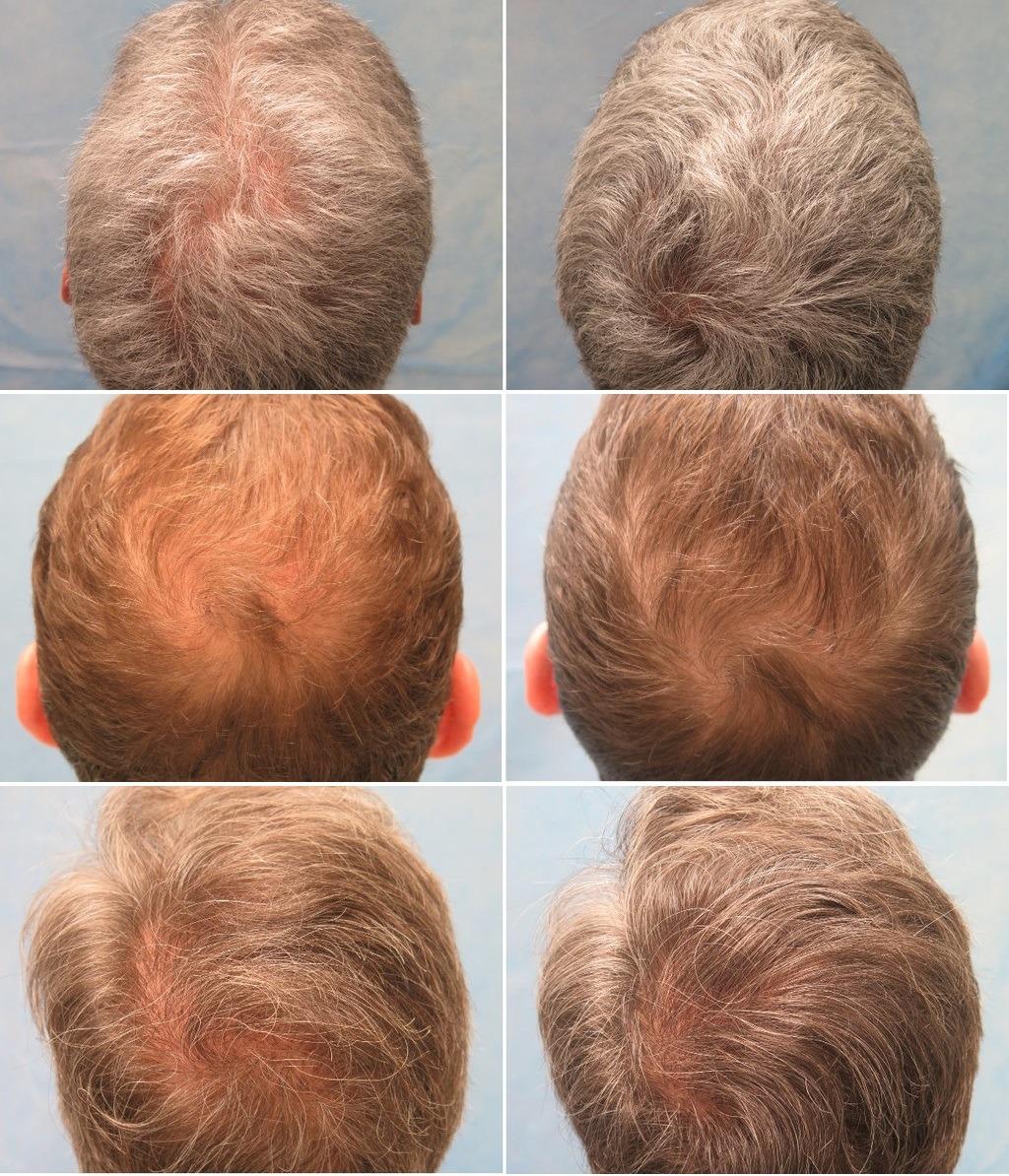 PRP терапия для волос